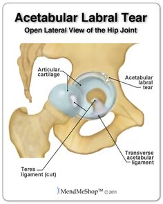 29434a82d56d19a4359628aa3394bb42--hip-pain-relief-hip-replacement