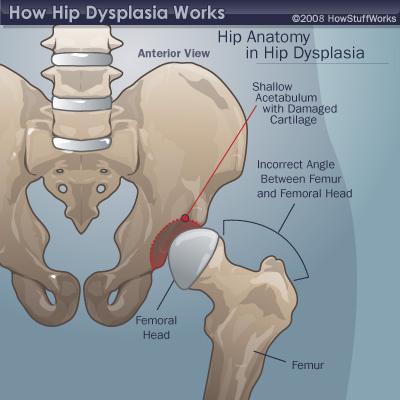 hip-dysplasia-dysplastic-anatomy